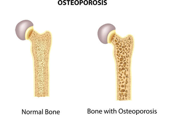 Osteoporosis Arthritis Rheumatology