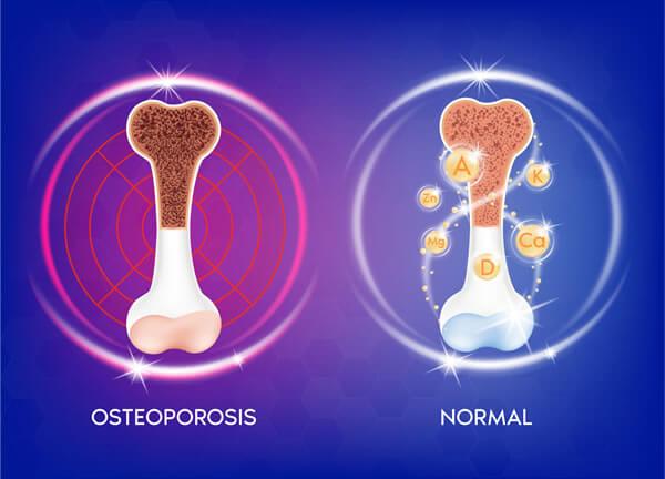 Osteoporosis Northern Virginia